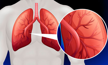 Viskas apie širdies aneurizmą