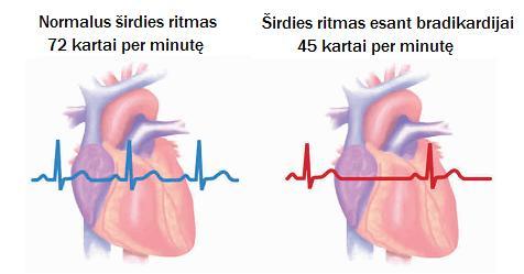 širdies širdies sveikatos komponentai)