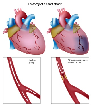 kaip treniruoti hipertenzija sergančią širdį ir kraujagysles