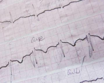 kardiograma parodė hipertenziją