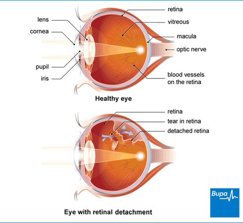 kraujavimas iš akies gydant hipertenzija