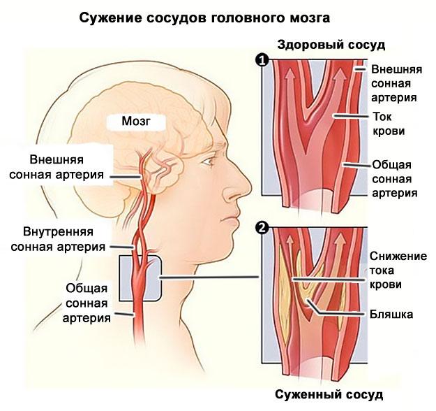 osteochondrozė ir hipertenzija