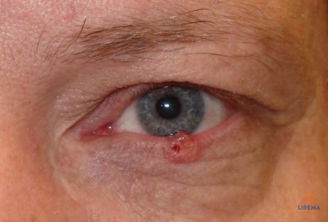 raudonų akių hipertenzija hipertenzijos gydymas be šalutinio poveikio