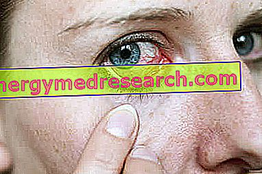 raudonų akių hipertenzija hipertenzija ir bronchitas