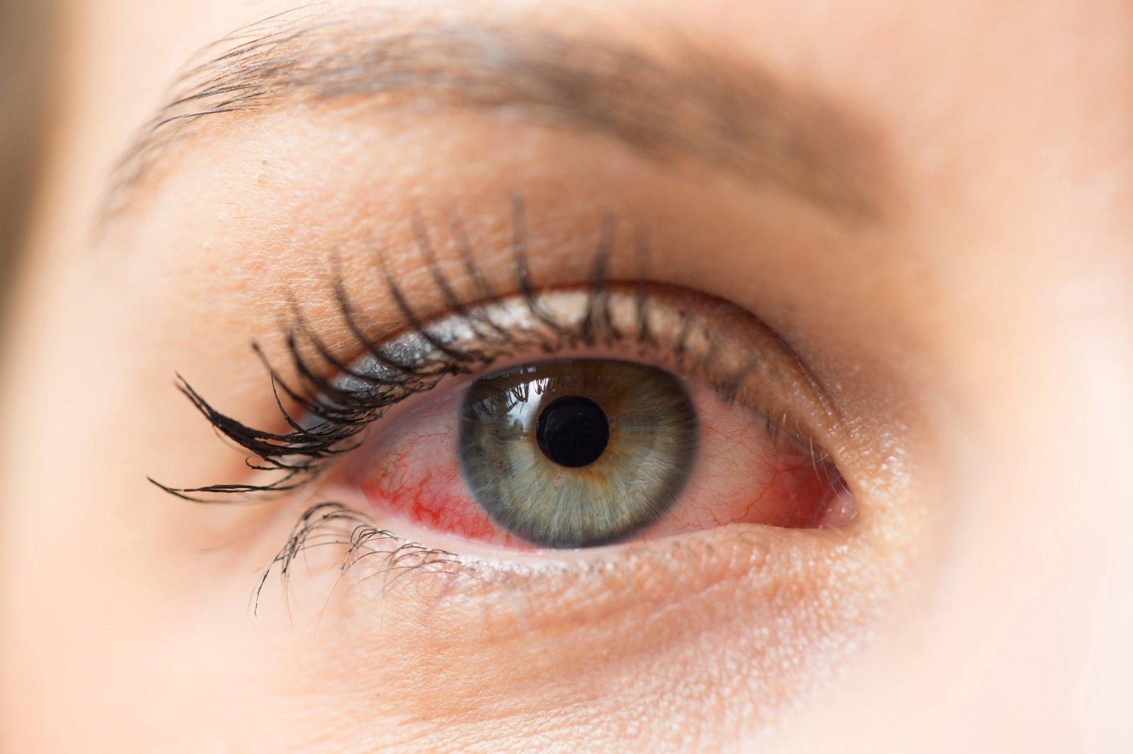 sergant hipertenzija, gali skaudėti akis)