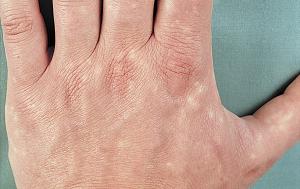 taškai ant rankų su hipertenzija)