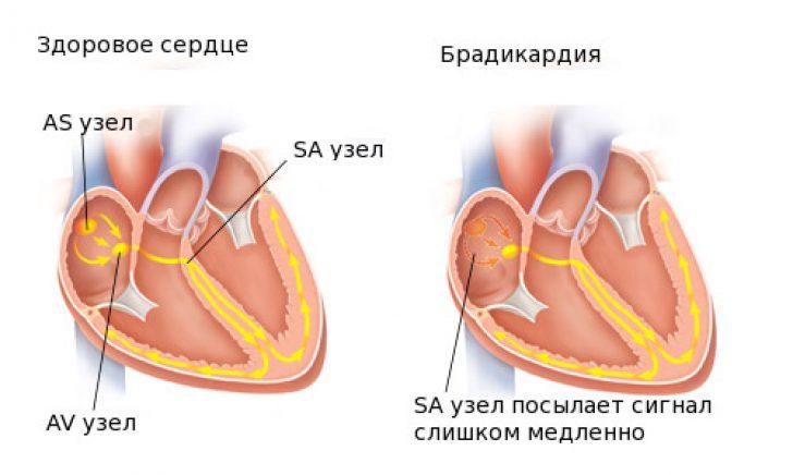 vaistai nuo bradikardijos ir hipertenzijos)