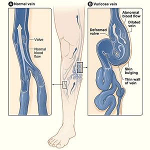 varikozinių venų, sergančių hipertenzija, gydymas)